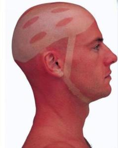 man_file_1059294_tan14-238x300 Best Essential Oils for Skin Rash